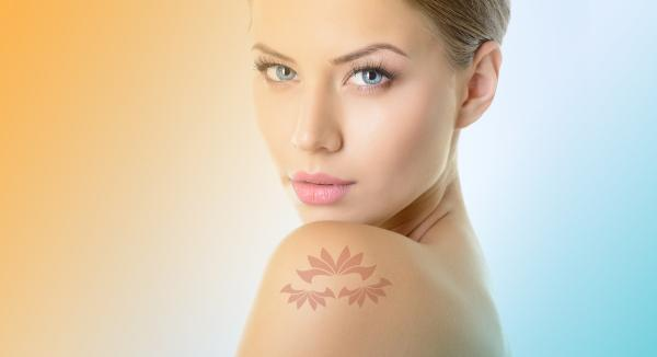Tattoo Removal With Q-Swich Laser Treatment